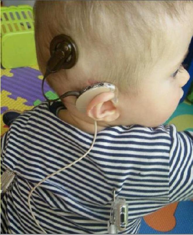 importancia de la detección temprana de la sordera en niños